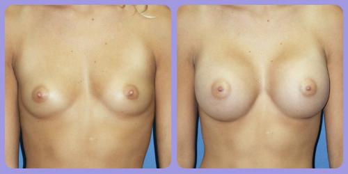 Orr-B&A-BreastAug1Front