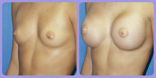 Orr-B&A-BreastAug1Side