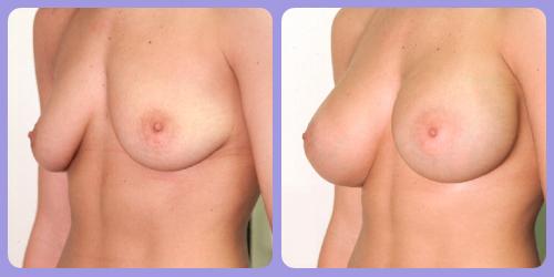 Orr-B&A-BreastAug3Side