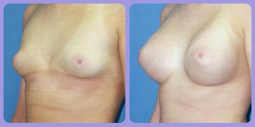 Orr-B&A-BreastAug4Side