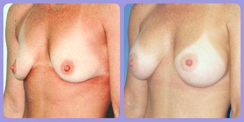 Orr-B&A-BreastAug5Side