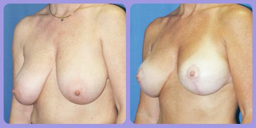 Orr-B&A-BreastLift1