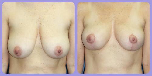 Orr-B&A-BreastLift2