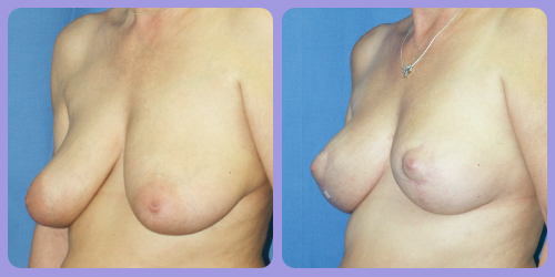 Orr-B&A-BreastLift3