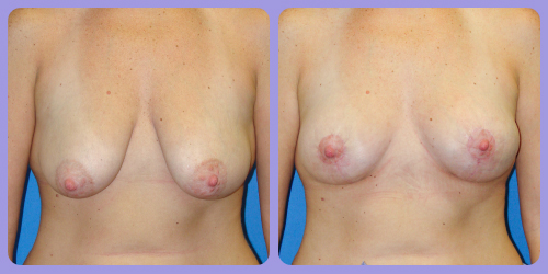 Orr-B&A-BreastLift4front